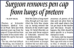 Surgeon removes pen cap from lungs of preteen